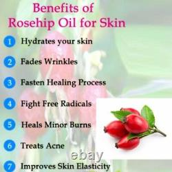 Rosehip Oil 100% Natural Pure Undiluted Uncut Carrier Oil 10ml To 500ml